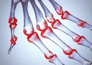 Reumatikus izületi gyulladás és a GUNA