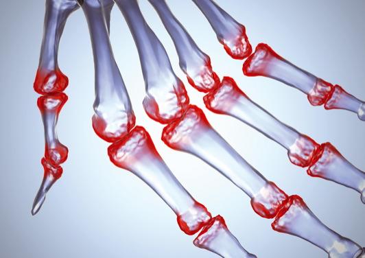 lágy szövetek és ízületek gyulladásos betegségei artrózis olajkezelés